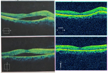 Fig. 2. Ocular Coherence Tomography Scan of the Macula, OD