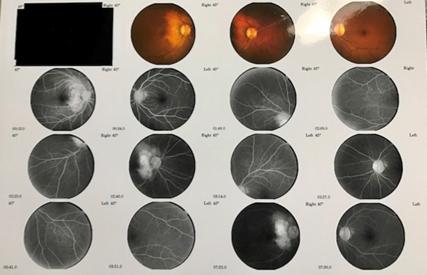 Fig. 3. Fluorescein Angiogram, OU