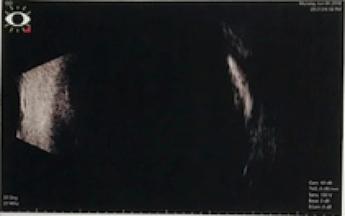 Fig. 4. B – Scan Ultrasound, OD